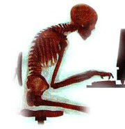 skeleton desk poor posture