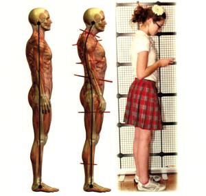 teens+forward+head+posture