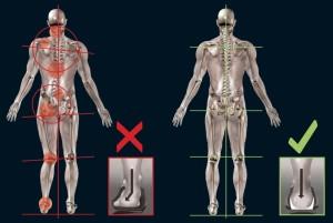 both_skeletons